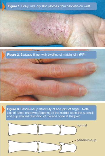 Psoriatic Arthritis Macomb St Clair Shores Mi Arora Hand Surgery