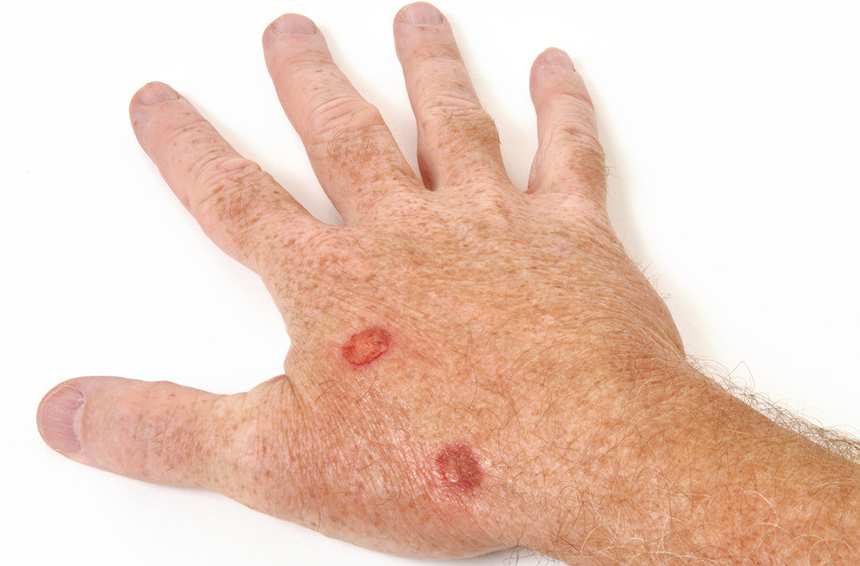 Skin Cancer Arora Hand Surgery