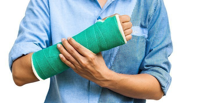 Caring for your Cast
