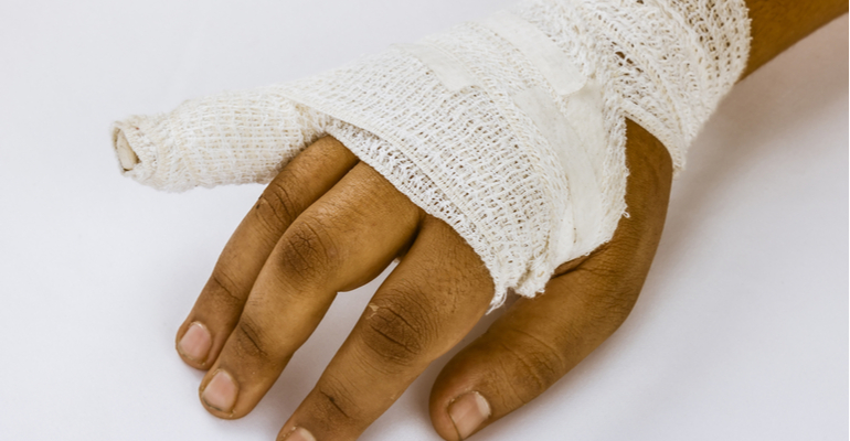 How are hand fractures treated?