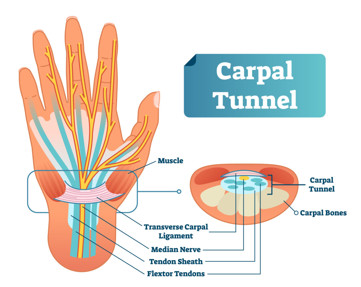 What is the carpal tunnel? As shown in this illustration, the carpal tunnel consists of nine tendons and the median nerve.