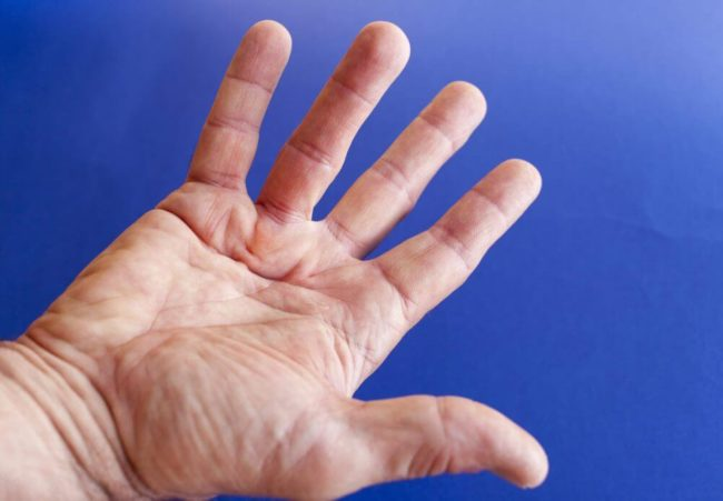 Can Dupuytren Contracture Be Painful